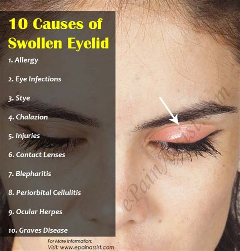eyelid swollen hordeolum chalazion difference www pixshark images galleries with a bite