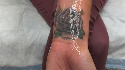 tattoo removal in san jose ca removal program expands to help human