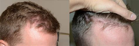 hair plugs for men hair transplants for men photos miami fl patient 40177