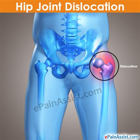 Car Joint Types by Hip Normal Dysplasia Subluxation Dislocation Anterior