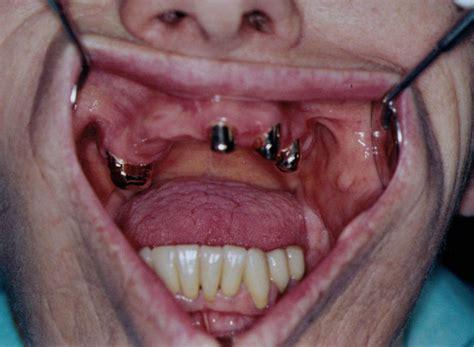 protesi dentarie parziali mobili pin protesi dentarie mobili in resina metallo parziali o