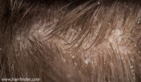 Does Hair Drying Cause Dandruff dandruff causes and treatments