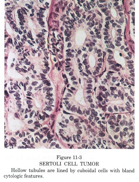 Sertoli Cell Only Pathology Outlines by Pathology Outlines Sertoli Cell Tumor