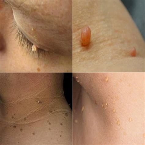 light colored spots on skin spots on skin cancer
