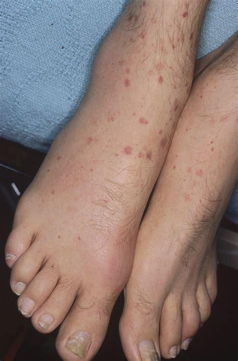 pensum imagenes medicas ucsd vasculitis angiitis ange 237 tis