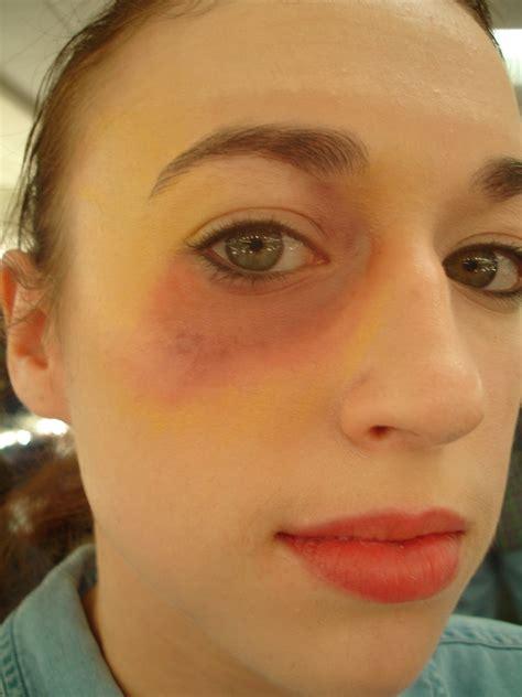 black eyes how to make a black eye with makeup mugeek vidalondon
