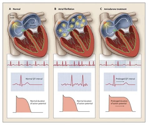afib medicine side effects amiodarone for atrial fibrillation nejm