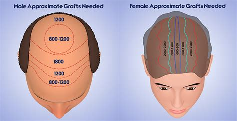30000 hair graft cost hair restoration cost ann arbor mi