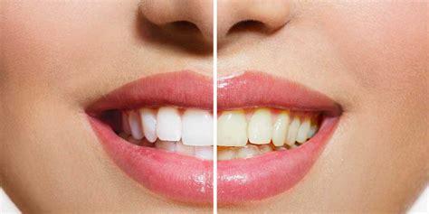 sbiancamento denti casa sbiancamento denti fai da te in croazia dentista croazia