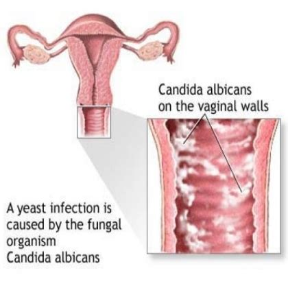 yeast infection causes symptoms treatment