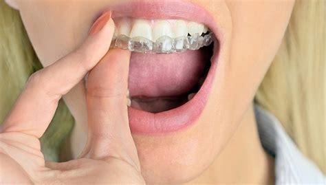 comfort dental braces aurora teeth straightening tendercare dental