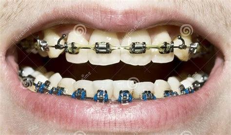 best color braces 97 best images about colors braces on