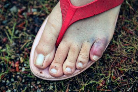 Date Interlude Physical Therapy For The Toe by Broken Toe Symptoms Pictures And Treatment
