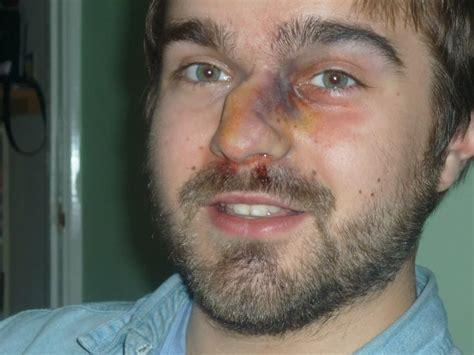cracked nose broken nose broken nose stage makeup morgue other and october