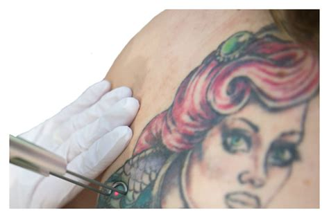 tattoo removal cardiff laser hair removal in south wales by vale laser clinic