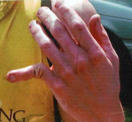 when does an injured finger need to be seen by the doctor