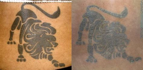 tattoo removal after 1 session removal process cost ultimate guide