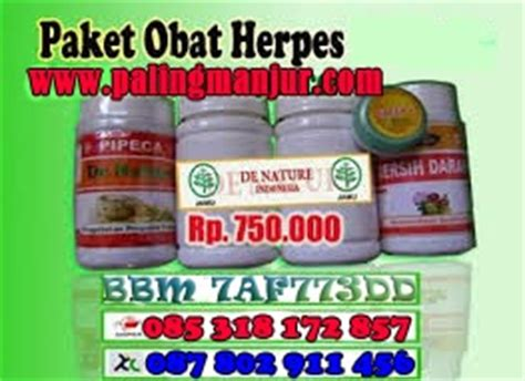 Obat Herpes Herbal De Nature 4 obat herpes herbal paling uh pusat obat herbal