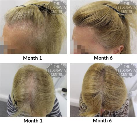 pattern of hair loss female pattern hair loss pictures photos
