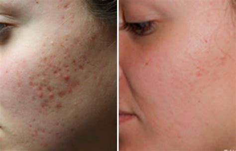 remove acne scars types of acne scars www pixshark com images galleries