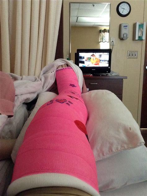 leg cast colors 1000 ideas about leg cast on llc cast arm