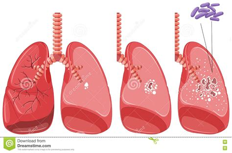 test tbc tuberculosis in human lungs stock vector illustration of