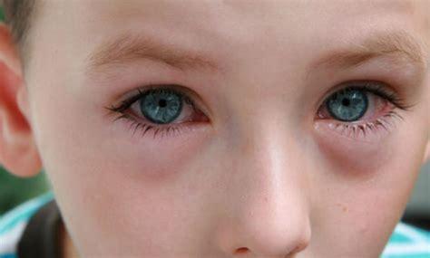 augen tränen beim liegen kawasaki syndrom symptome der seltenen kinderkrankheit