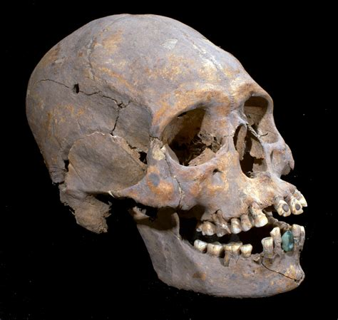 The History Blog 187 Blog Archive 187 Woman With Stone Tooth Skull On