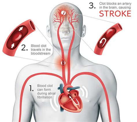 can a a stroke afib and stroke can warfarin cause headaches