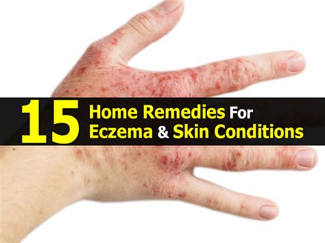 Eczema Home Treatment by 15 Home Remedies For Eczema Skin Conditions