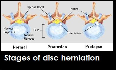 herniated disc in dogs i am your s spinal column daily discoveries