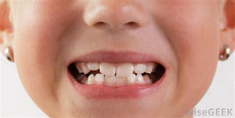 showing teeth when do children all of their teeth with pictures