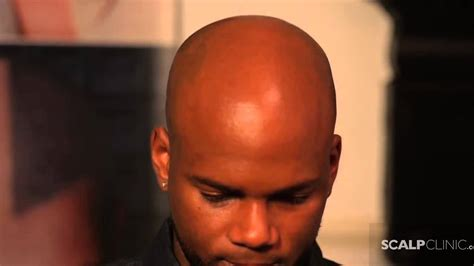 hairline parts black men hairline restoration for black men using scalp micro