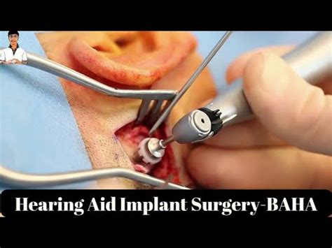 getting a perm with a baba hearing implant can i bone anchored hearing aid baha implant surgery surgery