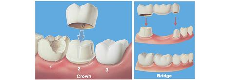 crown bridge dentist nairobi kenya tender care dental