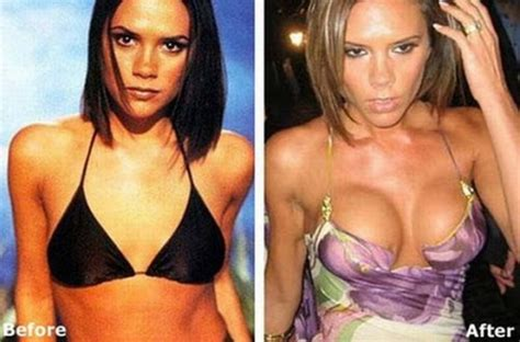 breast implants surgery all about celebrity breast celebrity before after plastic surgery