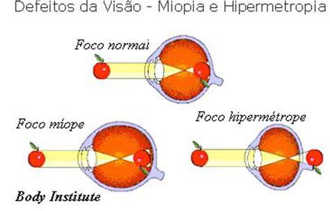 Nervo Tunic t 250 nicas ou membranas do olho doen 231 as da vis 227 o col 233 gio web