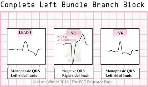 lbbb pattern ecg educator blog bundle branch blocks