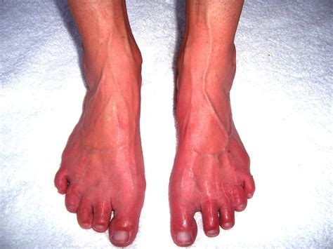 red hands erythromelalgia is a rare and frequently devastating