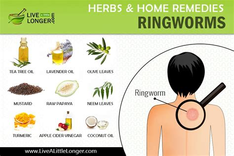 10 home remedies for ringworms