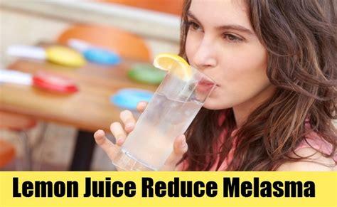 Will A Detox Help With Melasma by 4 Remedies To Treat Melasma Melasma Lip
