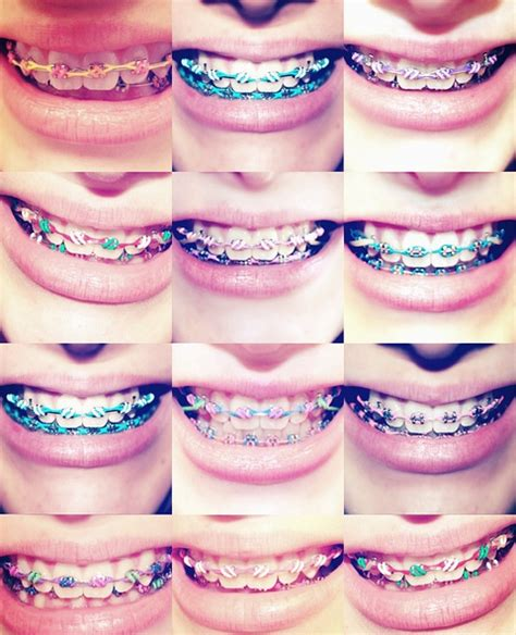 different color braces your opinion on braces girlsaskguys