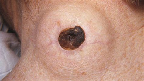 big epidermoid cyst – cystbursting.com