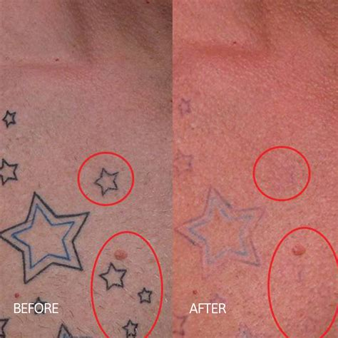 omaha tattoo removal 28 removal omaha before and after