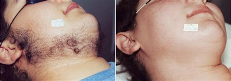 laser brazilian hair removal photos full male brazilian laser hair removal triple weft hair