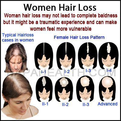 guide to hair loss conditions diagnose yourself 11 best perspectives on female pattern alopecia images on
