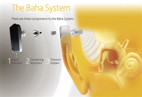 getting a perm with a baba hearing implant can i bone anchored hearing aid singapore general hospital