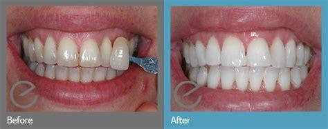 enlighten teeth whitening pma dental care dentist