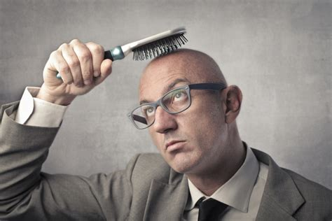 percentage of men balding hair loss and balding causes symptoms treatments