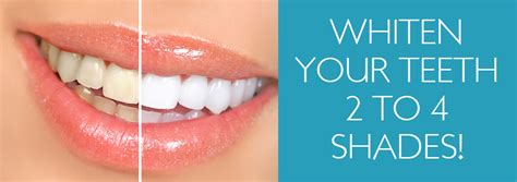 tanning bed teeth whitening easy tan salon spa melbourne fl tanning salon viera